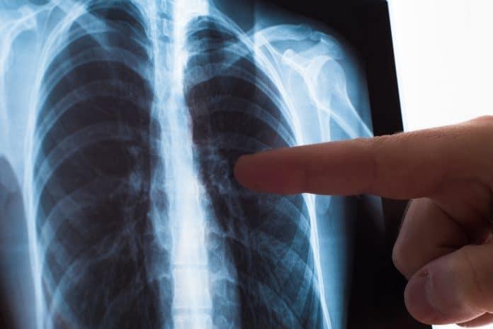 Peut-on prévenir le cancer du poumon ?