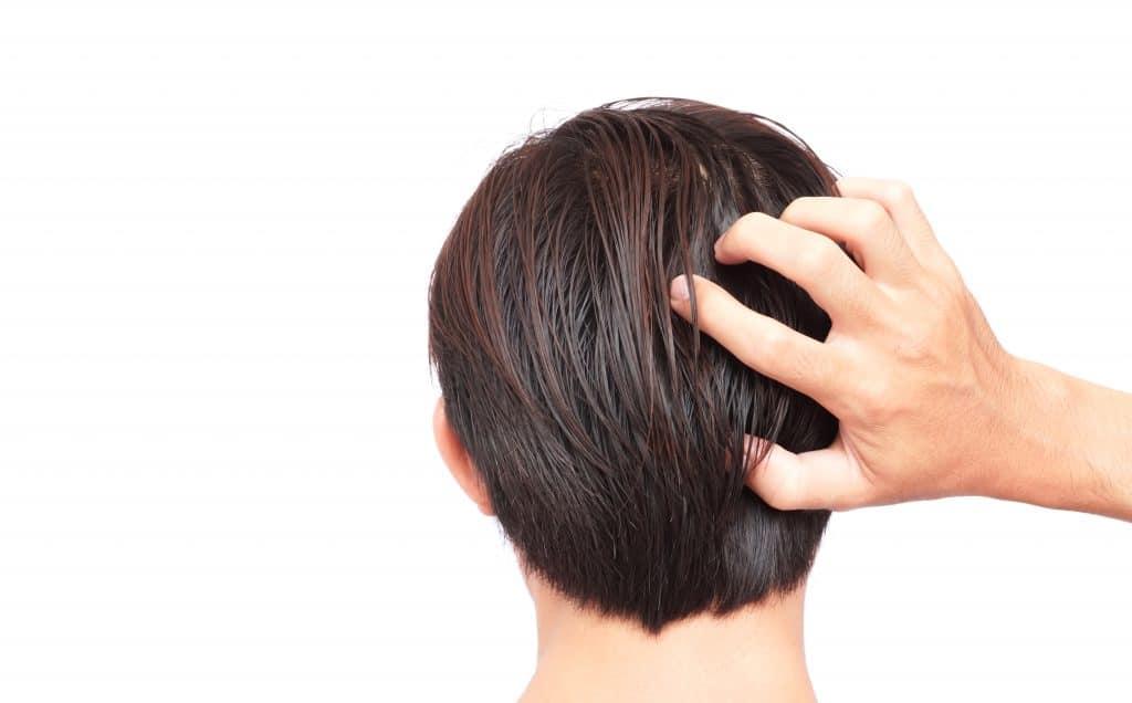 Les attentes par rapport à une greffe de cheveux