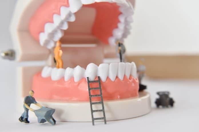 Comment se laver les dents correctement ?