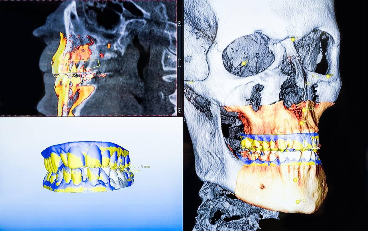 Cliché obtenu suite à une radio panoramique dentaire
