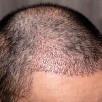 Que faut-il savoir sur la greffe de cheveux avant de passer le cap?