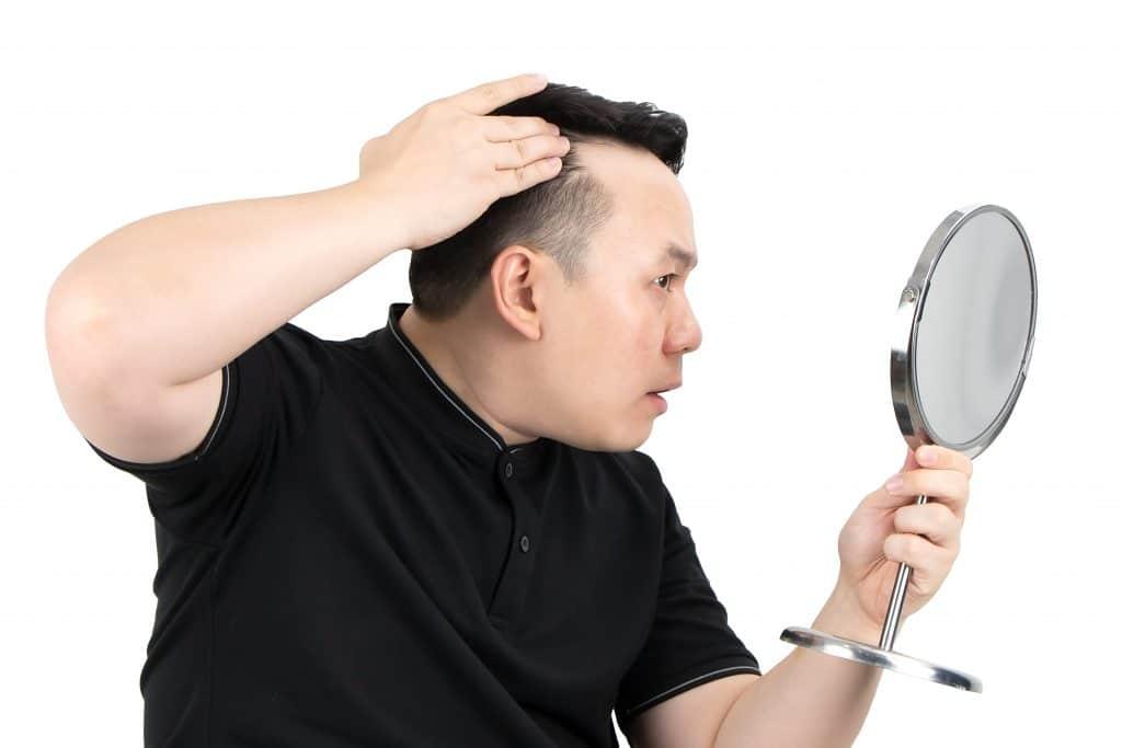 Que faut-il savoir sur la greffe de cheveux avant de passer le cap ?