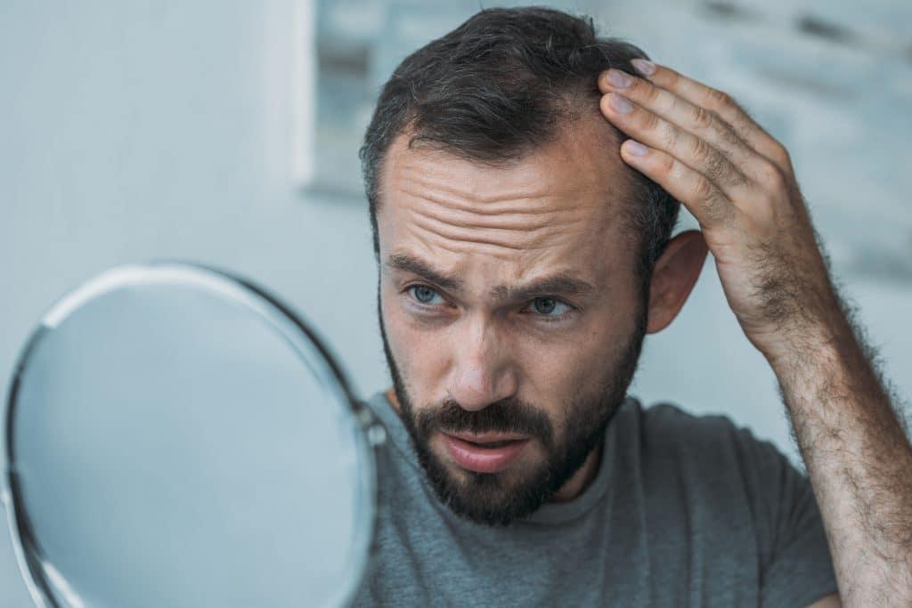 Quel âge pour une greffe de cheveux ?