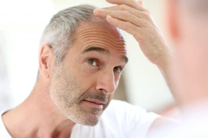La greffe de cheveux : réponses à quelques-unes de vos questions
