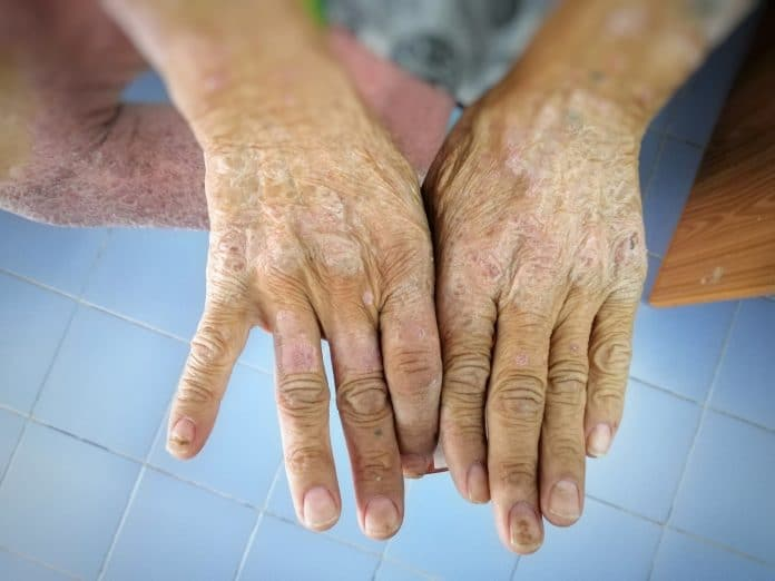 Peut-on mourir de la sclérodermie ?