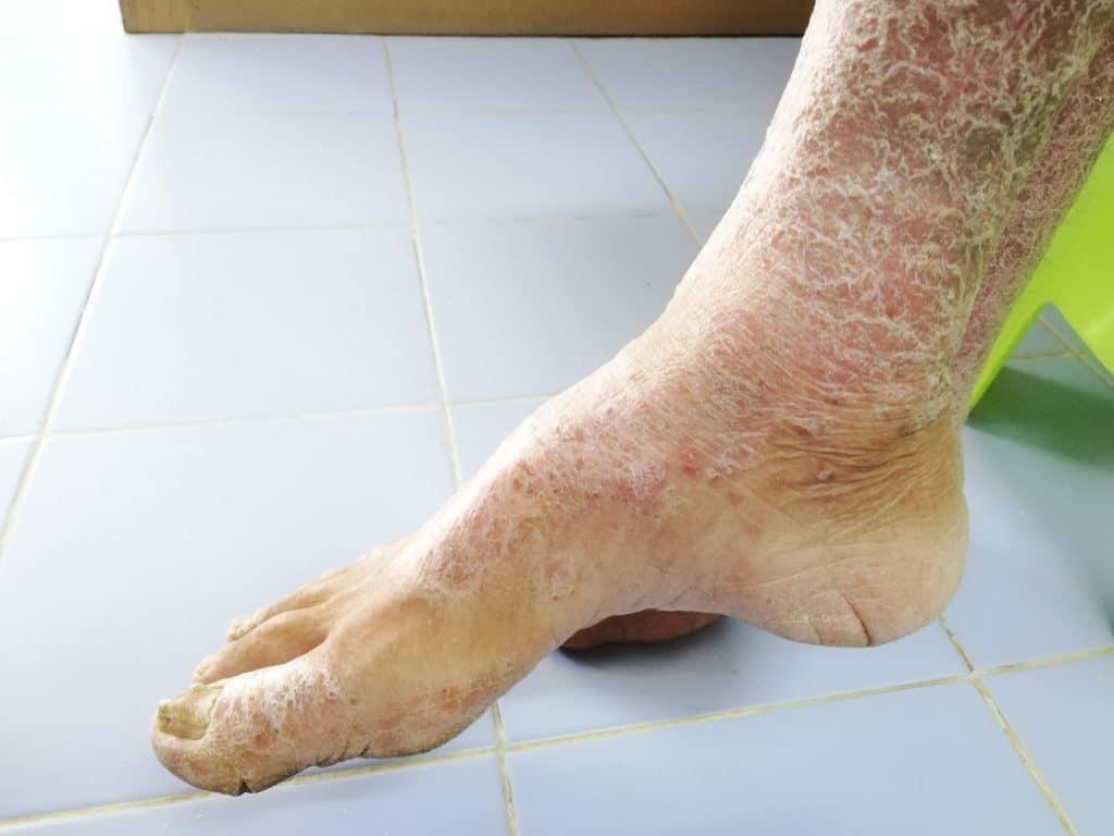 Comment attrape-t-on la sclérodermie?