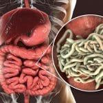 Oxyures : contamination, symptômes et traitement