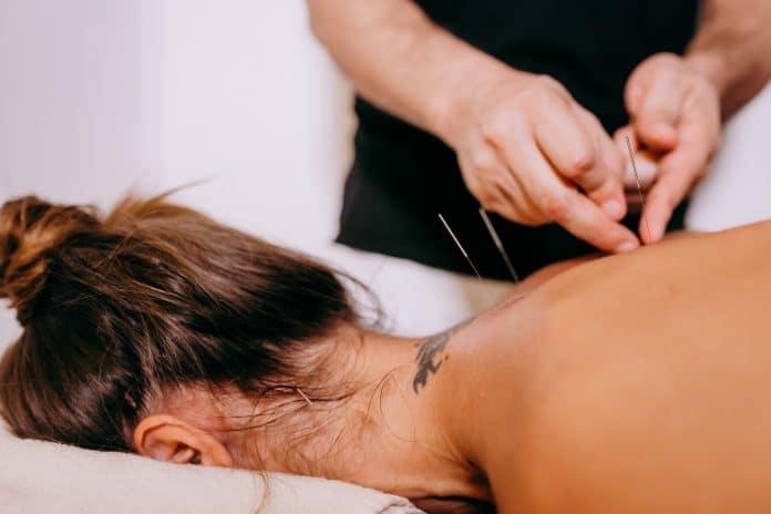 L'acupuncture pour soulager les douleurs musculaires