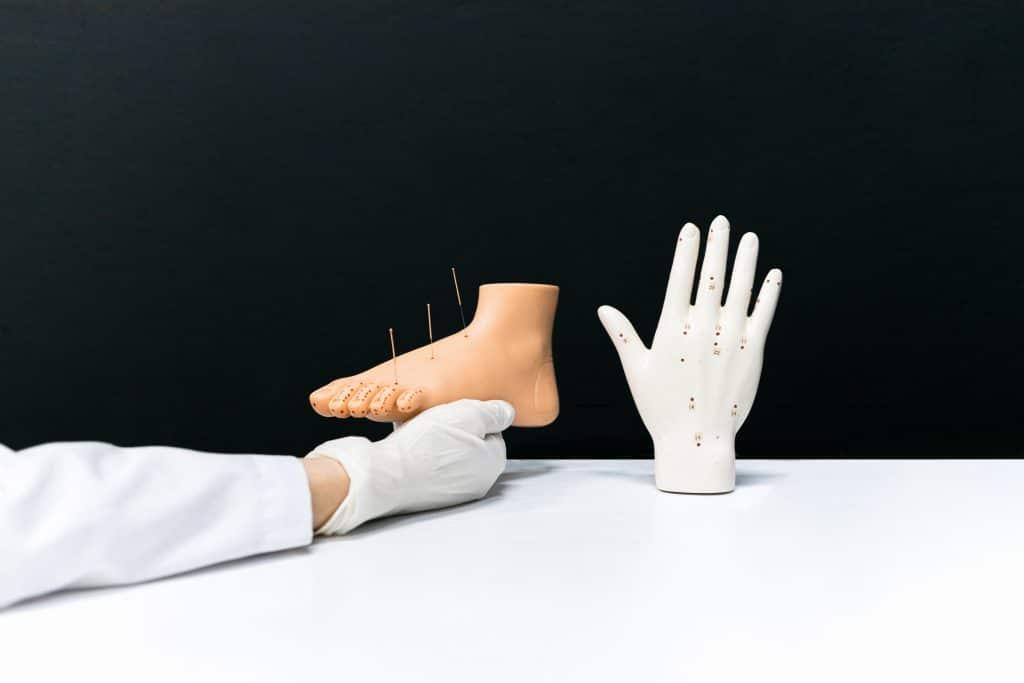 Pourquoi pratiquer l'acupuncture pour soulager les douleurs musculaires ?