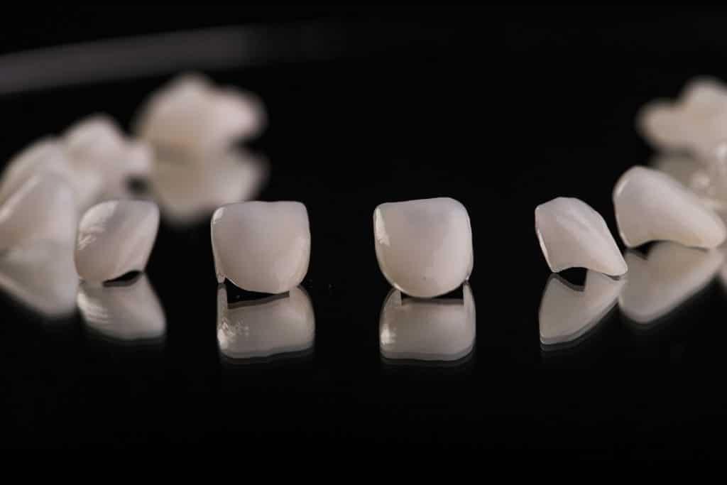 Comment choisir la clinique où se faire poser des facettes dentaires ?
