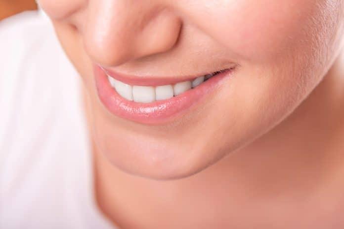 Où se faire poser des facettes dentaires ?